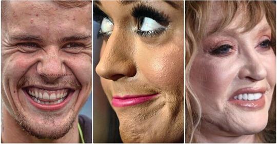 Прыщи, морщины, пластика: как на самом деле выглядит кожа знаменитостей вблизи