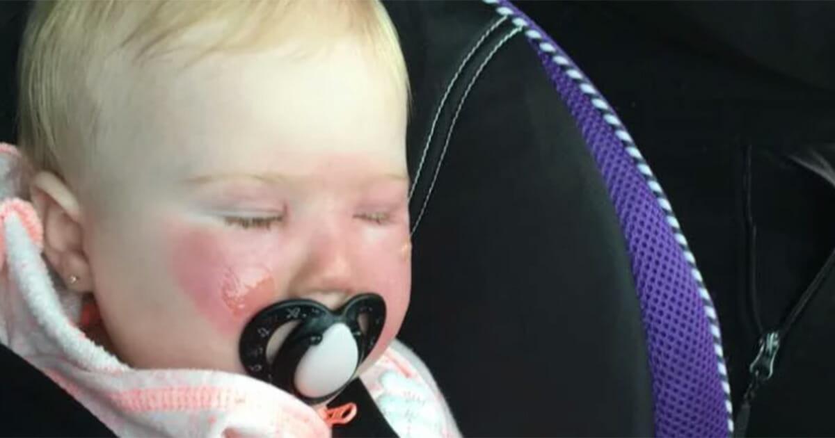 После того, что случилось с лицом её маленькой дочери, мать предупреждает всех о скрытой летней опасности