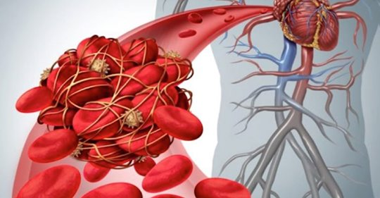 9 безопасных, натуральных разбавителей крови для уменьшения сгустков крови (тромбоз) и риска инсульта