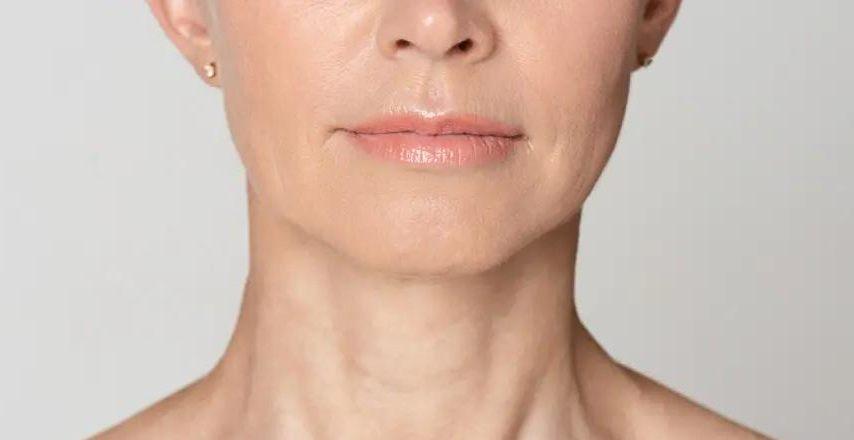 Часто пьете через соломинку и насвистываете: причины появления мимических морщин вокруг рта и как с ними бороться