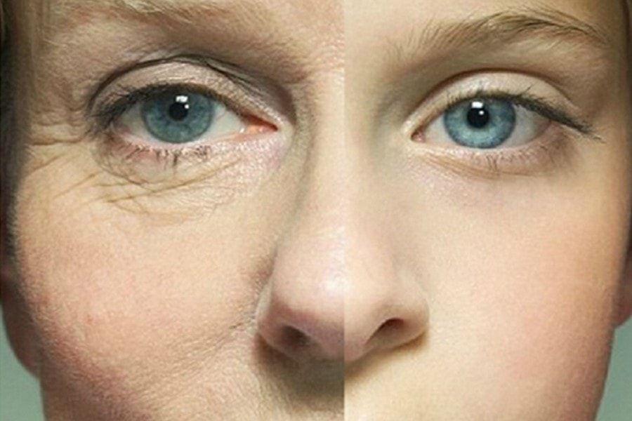 Не втирать макияж: привычки, которые способствуют появлению морщин вокруг глаз