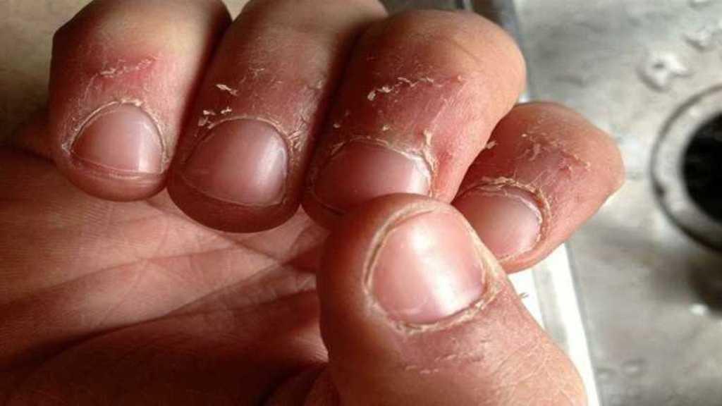 Заусенцы на ногтях больше не будут раздражать благодаря волшебной маске: после нее на маникюр можно не ходить