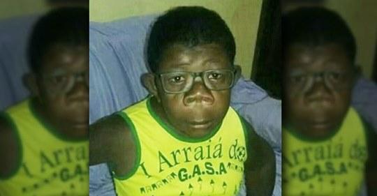 В Анголе обнаружили мальчика, который