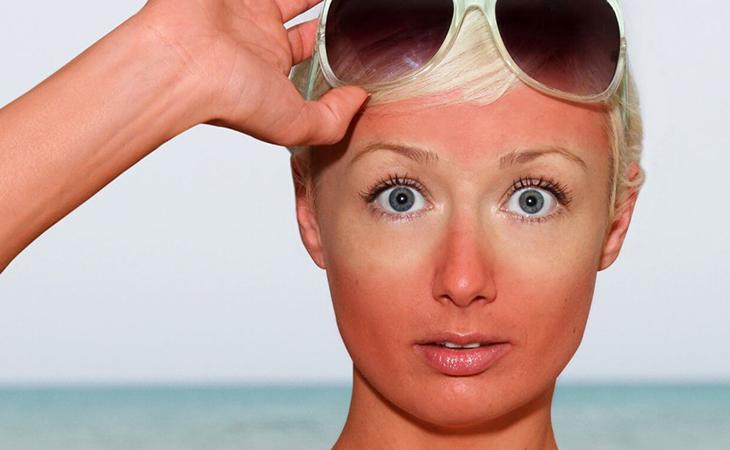 Спасет не только сметана: 5 домашних способов, которые помогут при солнечных ожогах кожи