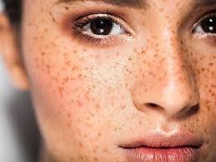 Пигментные пятна на лице: как избавиться и предотвратить их появление