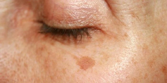 Пудры много не бывает: советы, которые помогут избежать появления пигментных пятен на лице