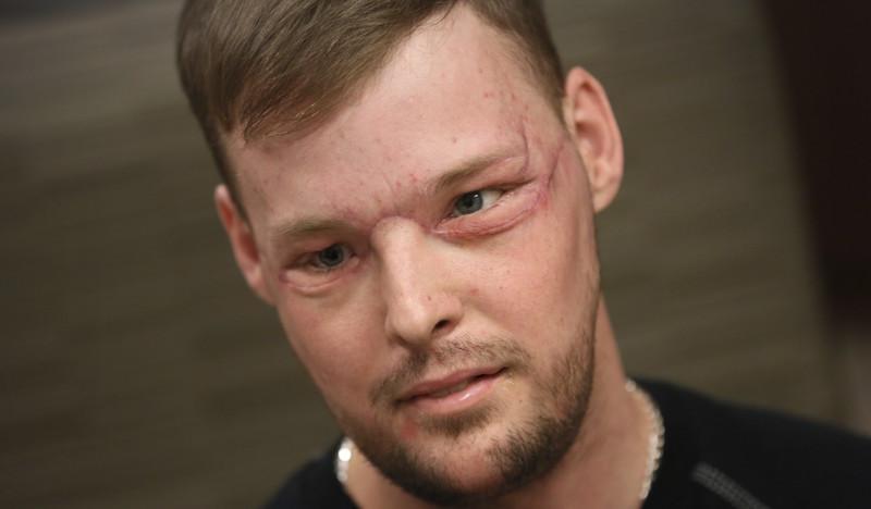 Невероятные результаты пересадки лица, сделанной парню после того, каконвыстрелил себе влицо