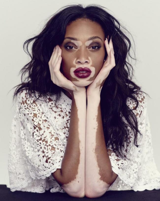 11 восхитительных женщин, которые доказали, что у красоты нет границ