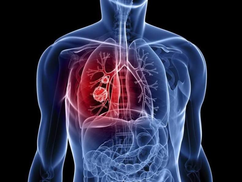 Великолепный хрен для лечения обструктивного бронхита, полиартрита, атеросклероза и не только!
