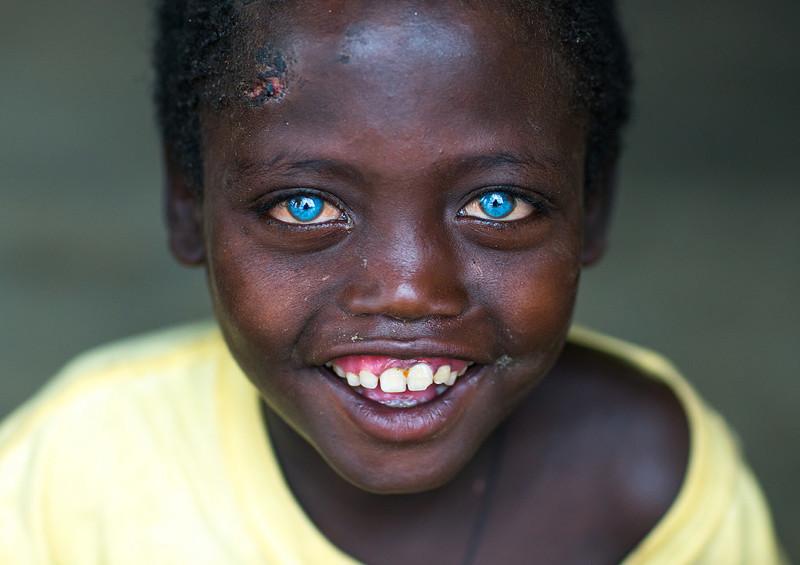 Невероятно красивые глаза африканского мальчика, подаренные емуболезнью