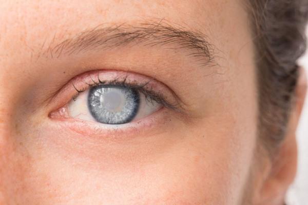 Глаукома глаза: симптомы и лечение