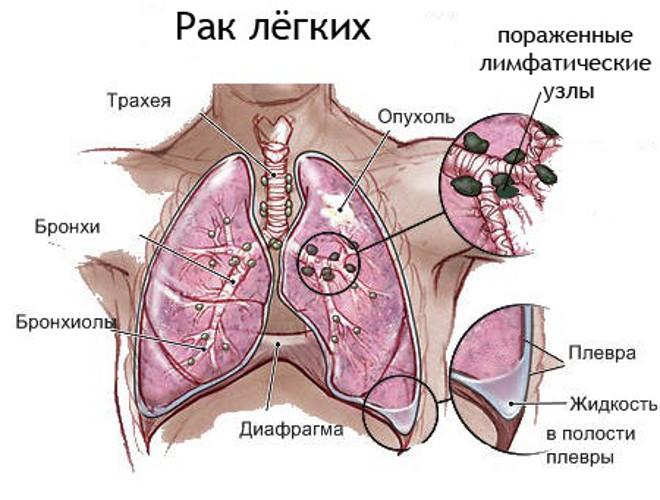 вобэнзим в онкологии четвертой стадии