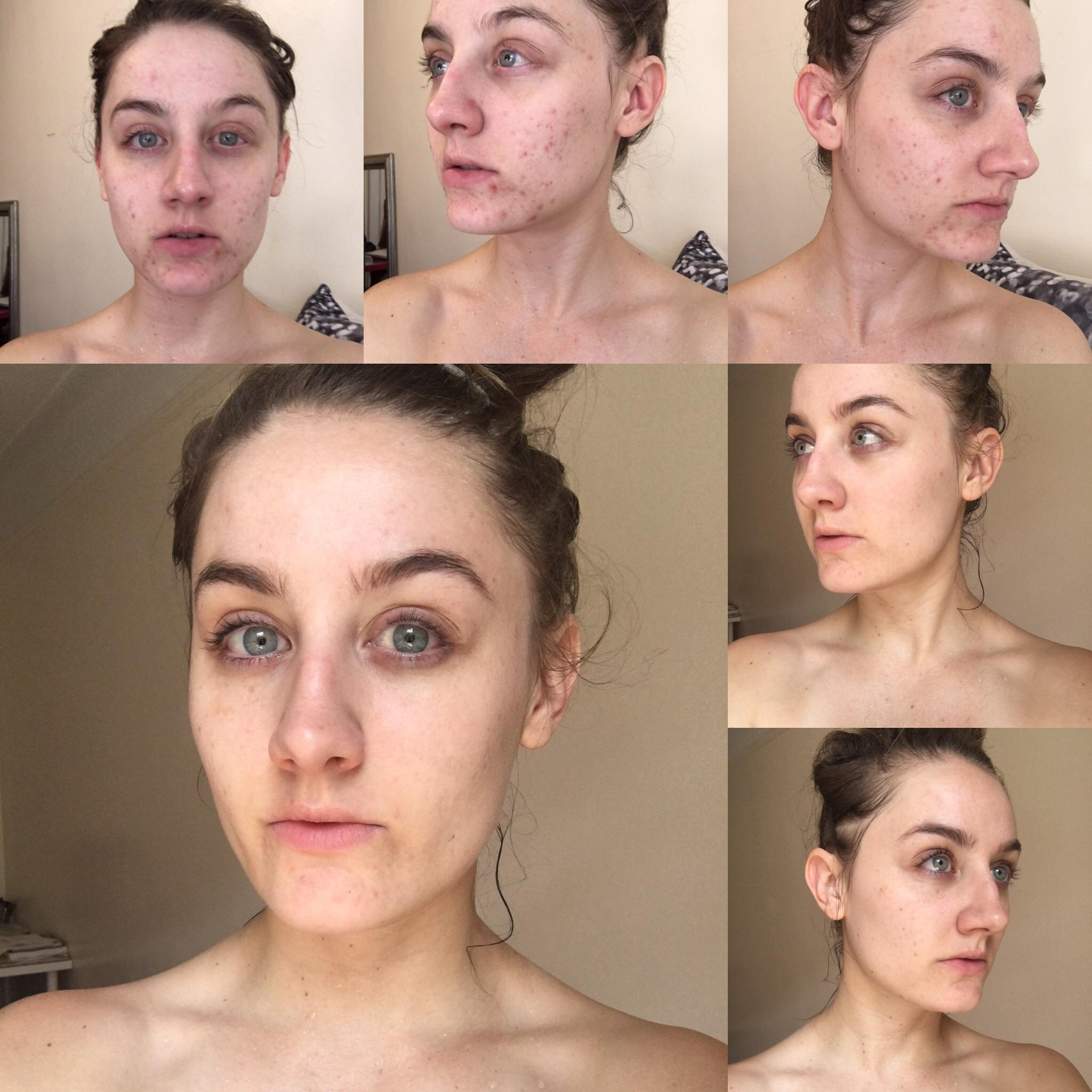 Она не умывала лицо целых полгода и сейчас готова поделиться результатами эксперимента