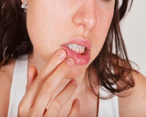 Язвочки во рту: фото, причины и лечение, отзывы