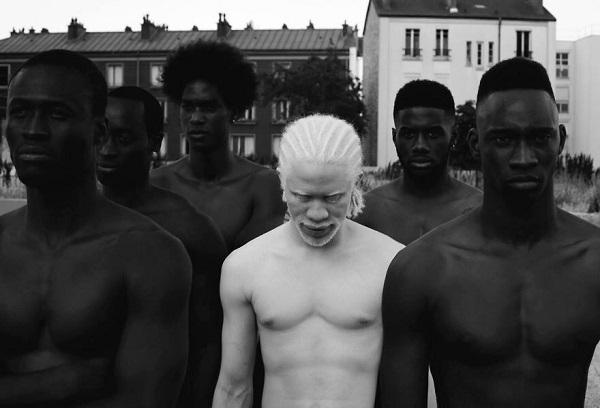 Этот нежный фотопроект об удивительных альбиносах заставит тебя по другому взглянуть на «особенных».