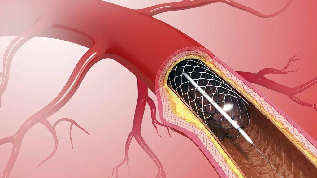 Атеросклеротический кардиосклероз: причины, симптомы и лечение