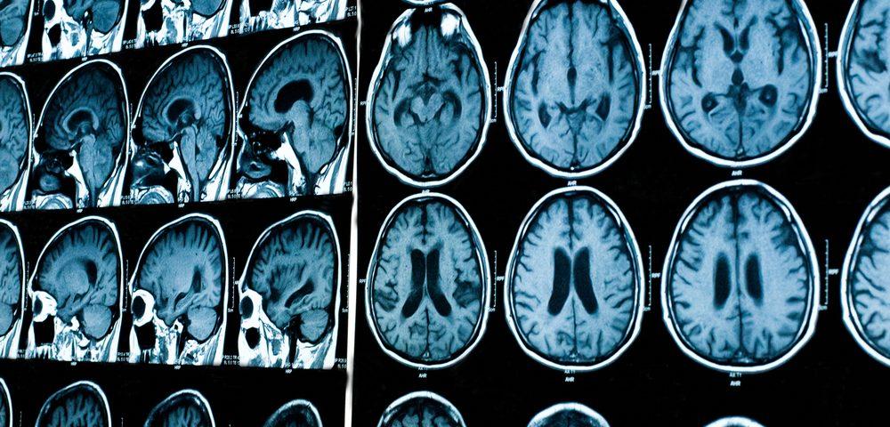 Болезнь Паркинсона: лечение традиционное и народные средства