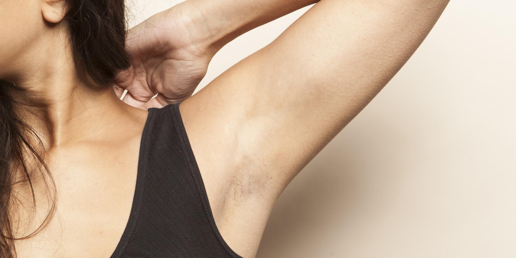 8 ошибок, которые вы допускаете при удалении волос с кожи подмышек