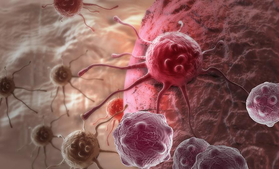 16 потенциальных симптомов рака, которые люди слишком часто игнорируют