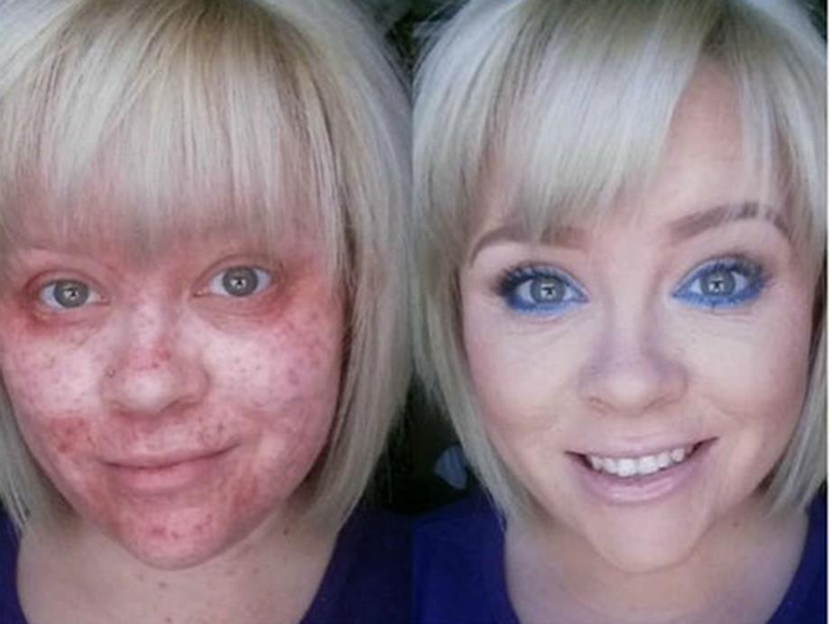 10 случаев, когда макияж действительно сотворил чудо!