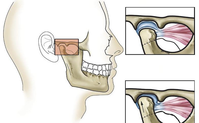 Челюстной сустав чрезмерная подвижность болит и опух голеностопный сустав что делать