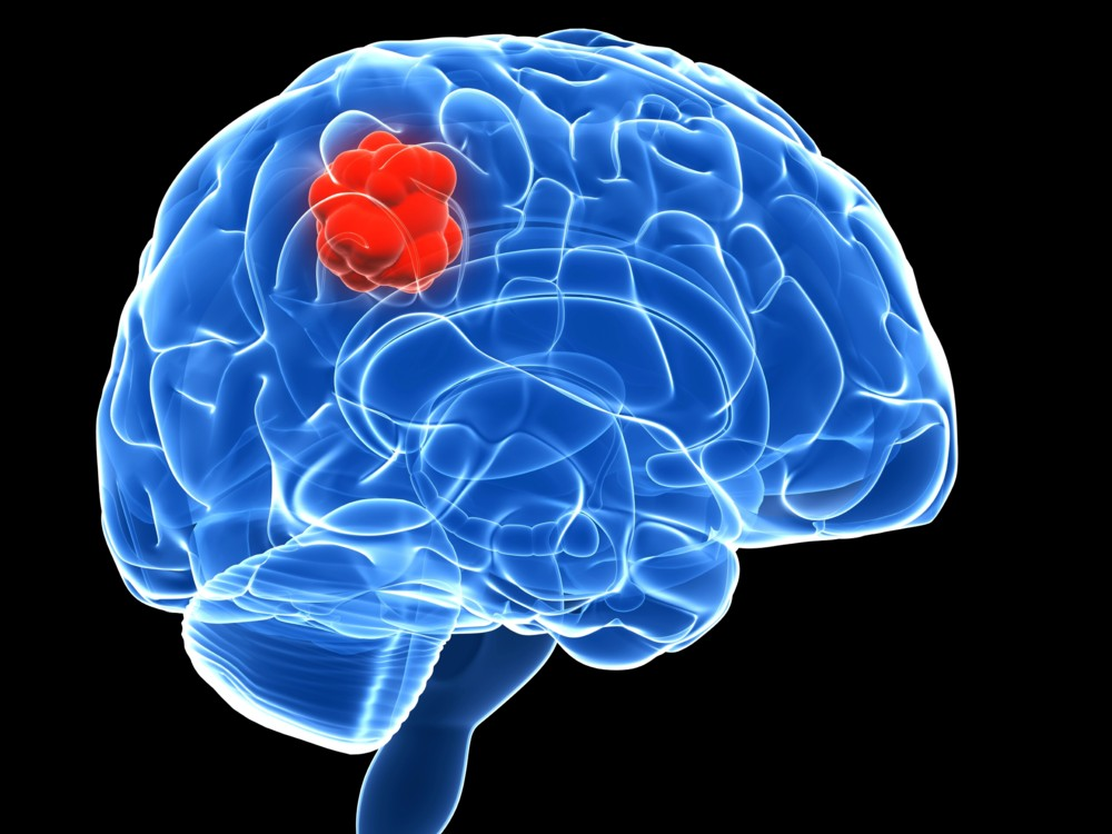 Формы симптомы и методы лечения глиобластомы головного мозга