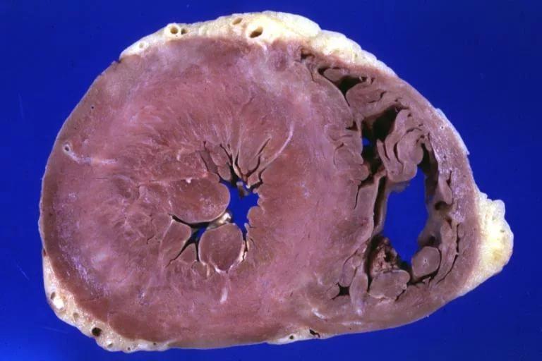 Гипертрофия миокарда: виды, причины, симптомы, диагностика и лечение