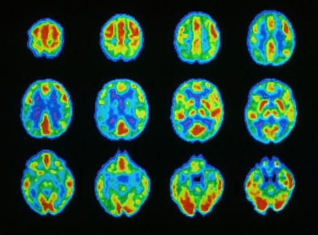 Гари Маркус: Головоломки нашего мозга