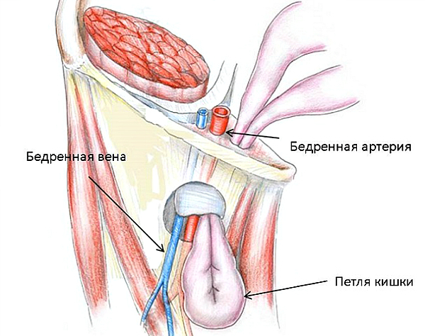 Бедренная грыжа - причины, симптомы, диагностика и особенности лечения