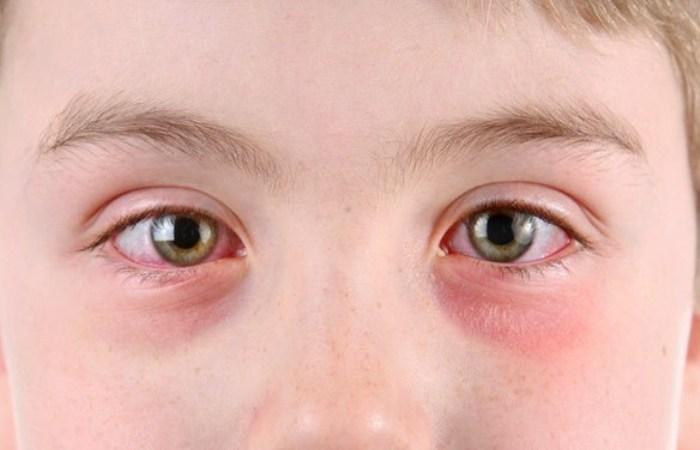 Герпес на глазах: причины, симптомы, фото, методы лечения
