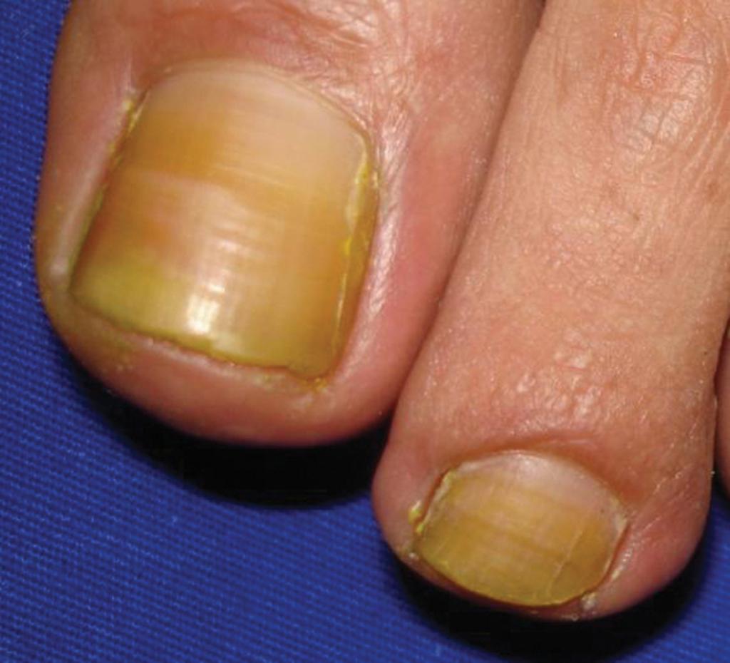 Ноготь на большом пальце ноги пожелтел: почему и что делать