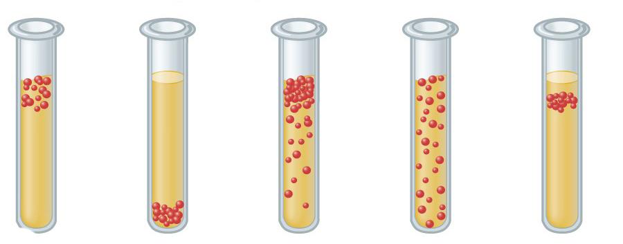 Анаэробы - это бактерии. Особенности анаэробов, классификация и методы культивирования