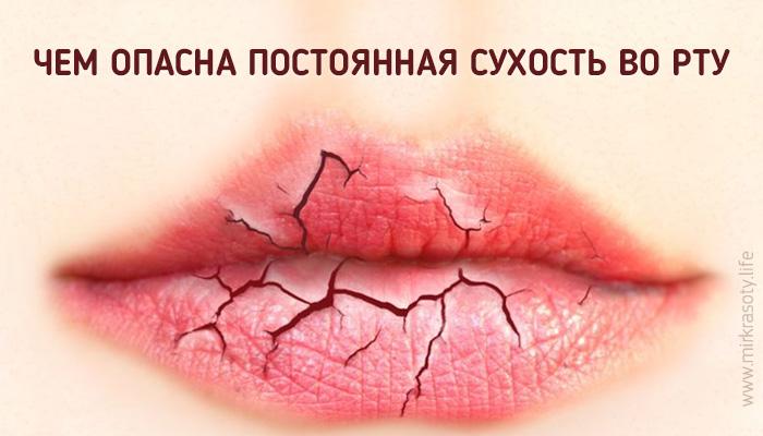Постоянная сухость во рту — симптом опасной болезни!